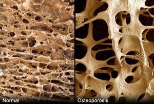 οστεοπόρωση-φ11-300x203