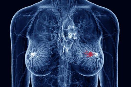 metastash karkinou mastou